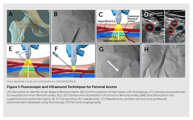 Flouroscopic and ultrasound techniques for femoral access
